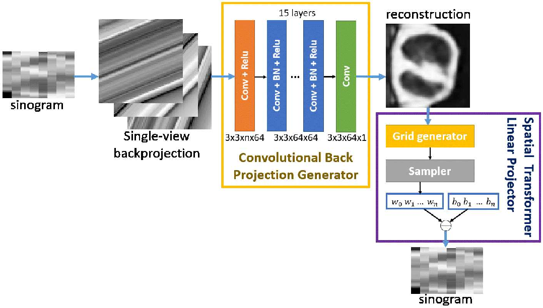 Figure 1 for Unsupervised Sparse-view Backprojection via Convolutional and Spatial Transformer Networks
