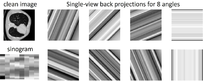 Figure 2 for Unsupervised Sparse-view Backprojection via Convolutional and Spatial Transformer Networks