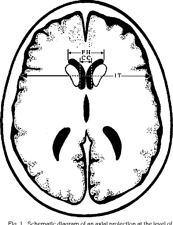 Figure 1 From Juvenile Huntington Disease Ct And Mr Features