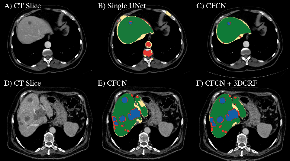 Figure 1 for Automatic Liver and Lesion Segmentation in CT Using Cascaded Fully Convolutional Neural Networks and 3D Conditional Random Fields