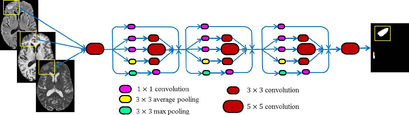 Figure 2 for TBI Contusion Segmentation from MRI using Convolutional Neural Networks