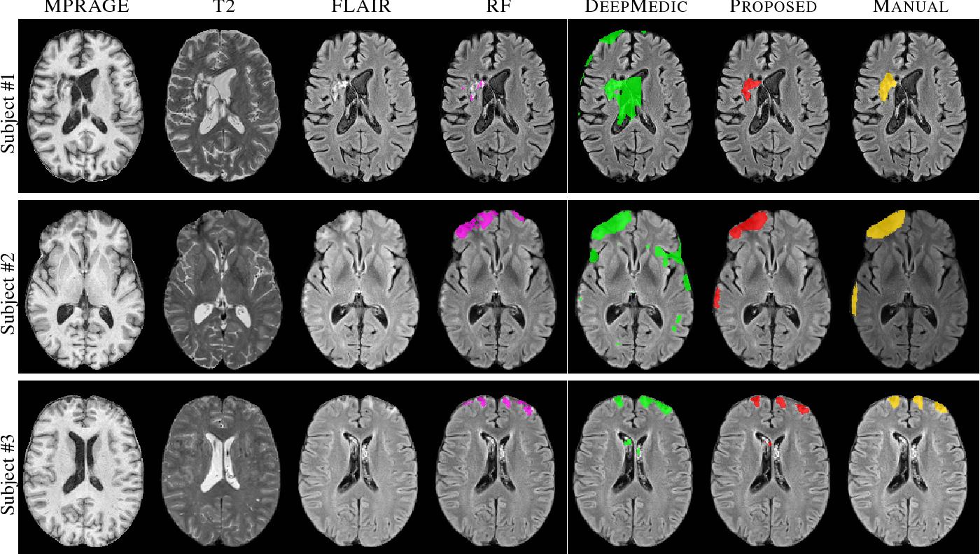 Figure 3 for TBI Contusion Segmentation from MRI using Convolutional Neural Networks