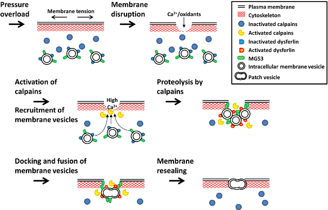 Fig. 3. A proposed model for the role of calpains in membrane maintenance. Membrane tensio concentration upon membrane disruption activates intracellular calpains. Intracellular double protein kinase. Oxidized MG53-tethered intracellular vesicles are recruited toward the injur dysferlin on the vesicles. Vesicles dock and fuse with one another, forming a patch vesicle. The