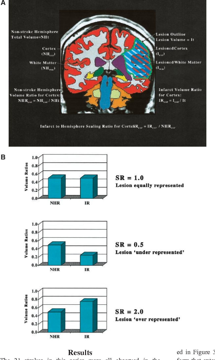 Anatomy of stroke, Part II: volumetric characteristics with ...