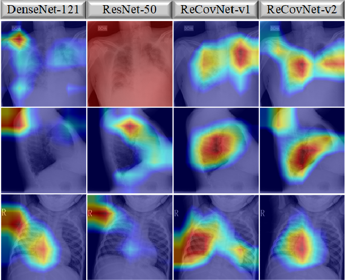 Figure 4 for Reliable COVID-19 Detection Using Chest X-ray Images