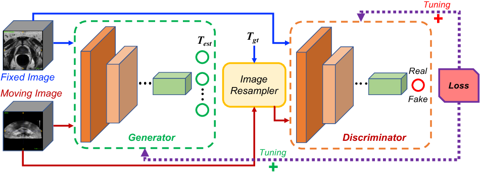 Figure 1 for Adversarial Image Registration with Application for MR and TRUS Image Fusion