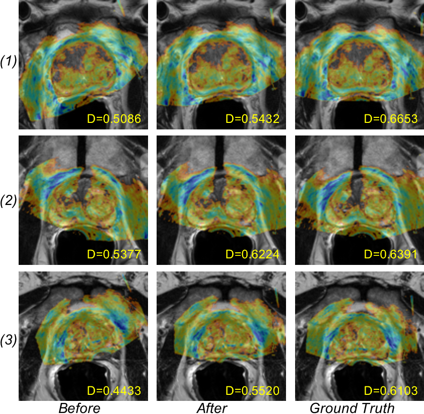 Figure 2 for Adversarial Image Registration with Application for MR and TRUS Image Fusion