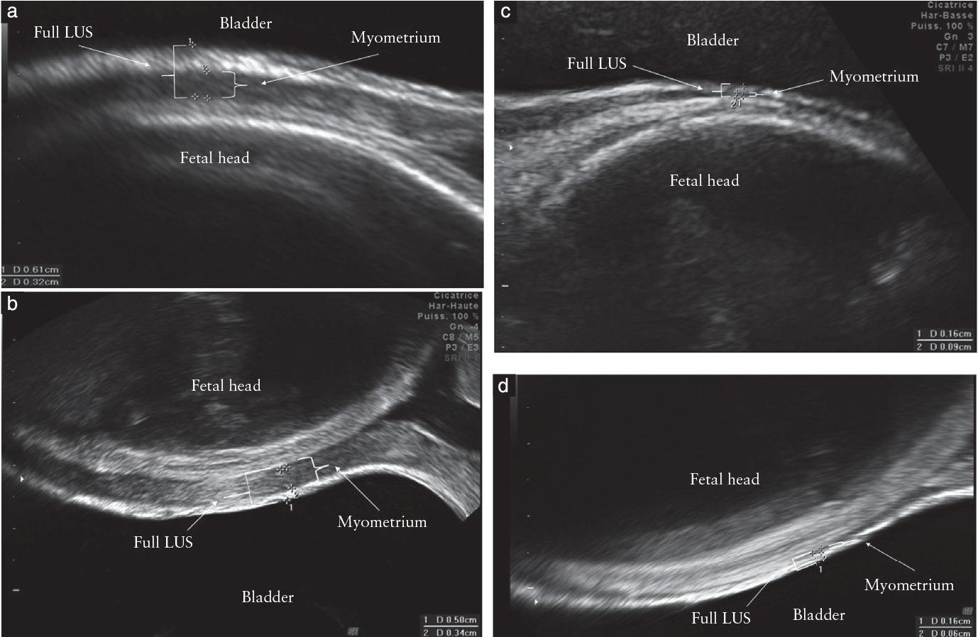 Figure 1 from Can third-trimester assessment of uterine scar in
