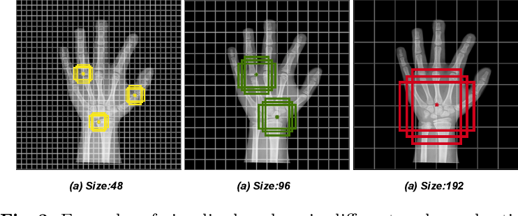 Figure 4 for PRSNet: Part Relation and Selection Network for Bone Age Assessment