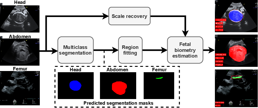 Figure 4 for AutoFB: Automating Fetal Biometry Estimation from Standard Ultrasound Planes