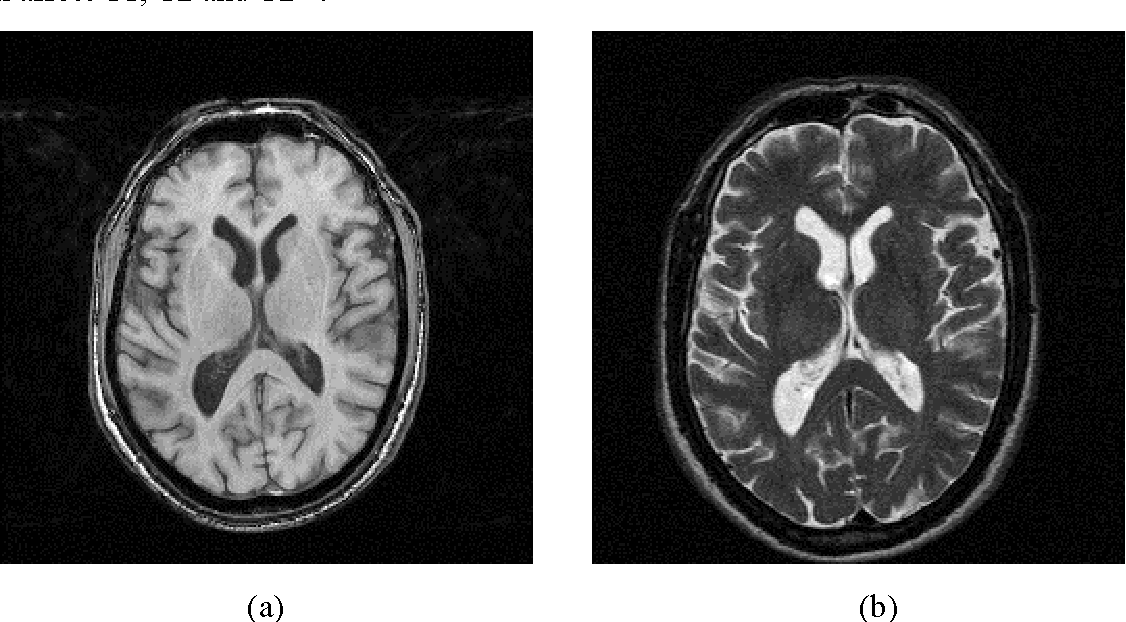 Figure 1 for Binary and nonbinary description of hypointensity in human brain MR images