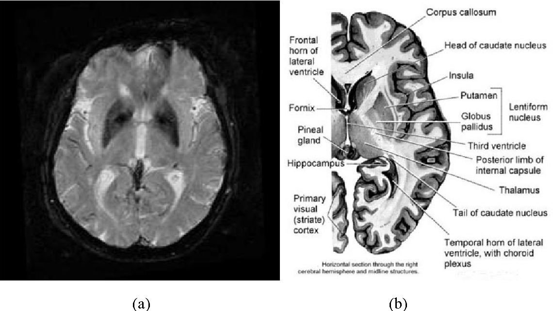 Figure 3 for Binary and nonbinary description of hypointensity in human brain MR images