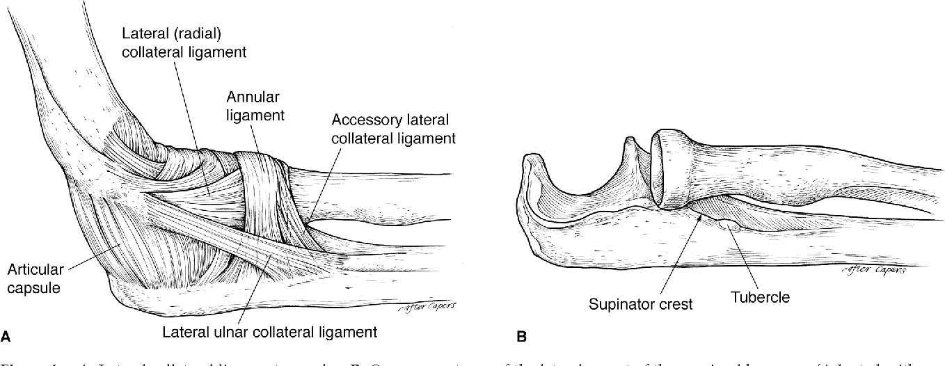 Figure 1 from Posterolateral rotatory instability of the elbow ...