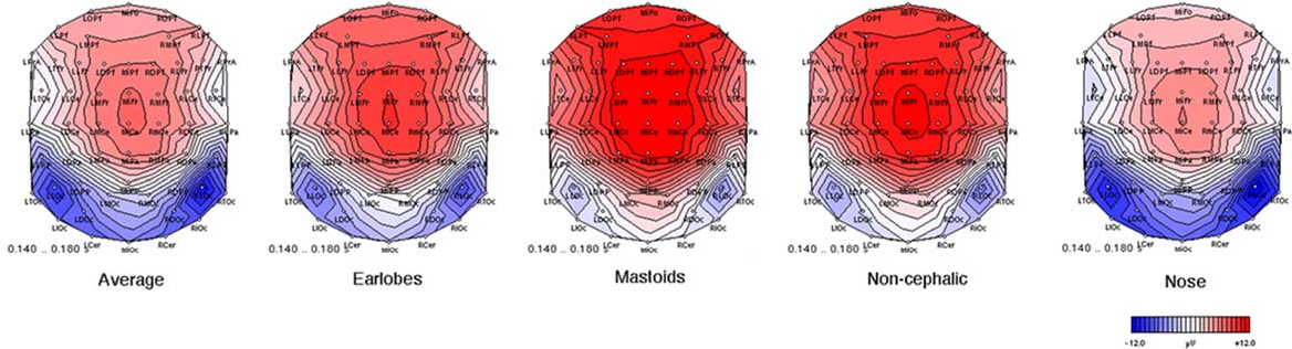 Mastoid Process Semantic Scholar