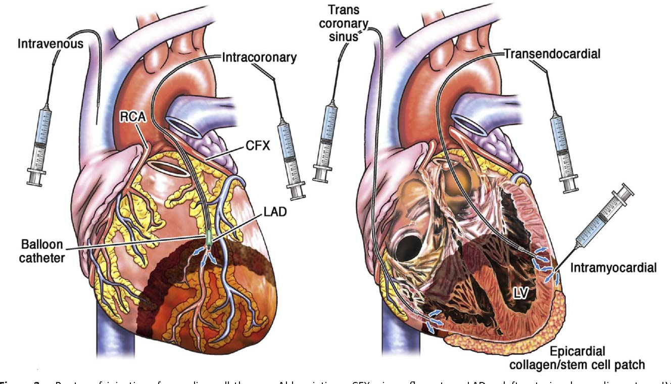 Figure 2 from Bone Marrow Therapies for Chronic Heart Disease ...