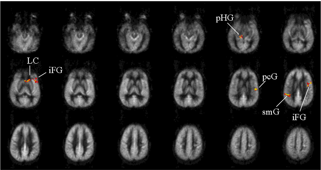 Significant Clusters From The Paired Comparison Between ADHD Patients On Perfusion