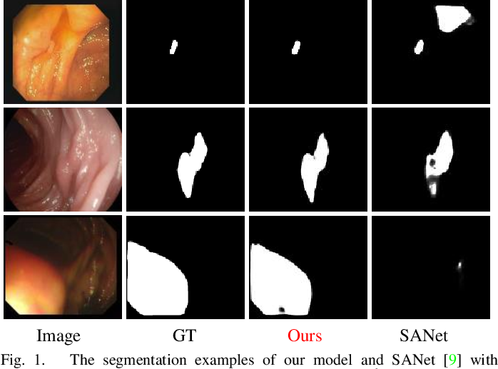 Figure 1 for Polyp-PVT: Polyp Segmentation with Pyramid Vision Transformers