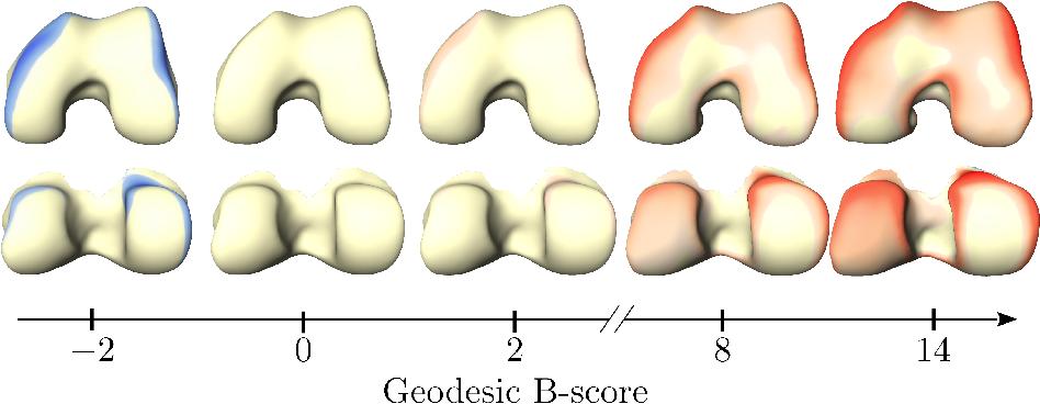 Figure 1 for Geodesic B-Score for Improved Assessment of Knee Osteoarthritis