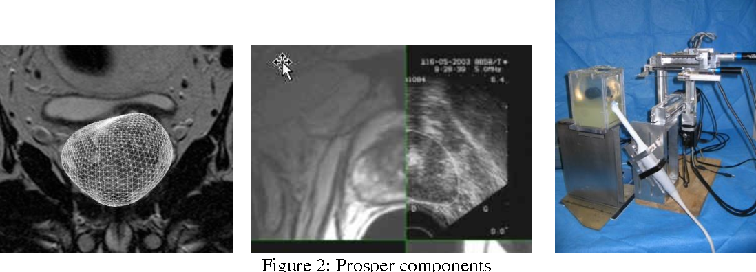 Figure 2 for Prosper: image and robot-guided prostate brachytherapy