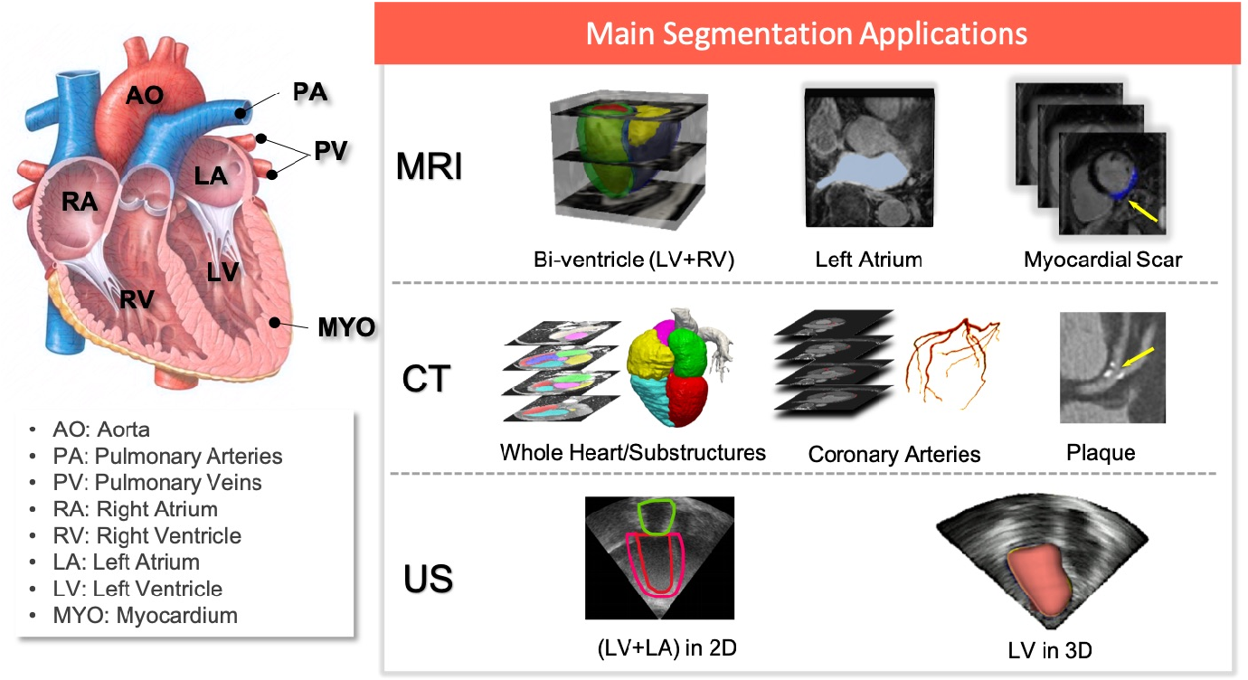 Figure 1 for Deep learning for cardiac image segmentation: A review