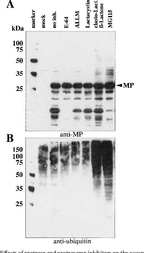 FIG. 2. Effects of protease and proteasome inhibitors on the accumulation of MP during TMV infection of tobacco BY-2 protoplasts. Protoplasts were harvested after the indicated time and subjected to Western blot analysis with anti-MP and antiubiquitin antibodies. (A) Protoplasts cultured in the absence or presence of inhibitors were analyzed with anti-MP antibody. (B) Aliquots of the same samples were analyzed in parallel with antiubiquitin antibodies.
