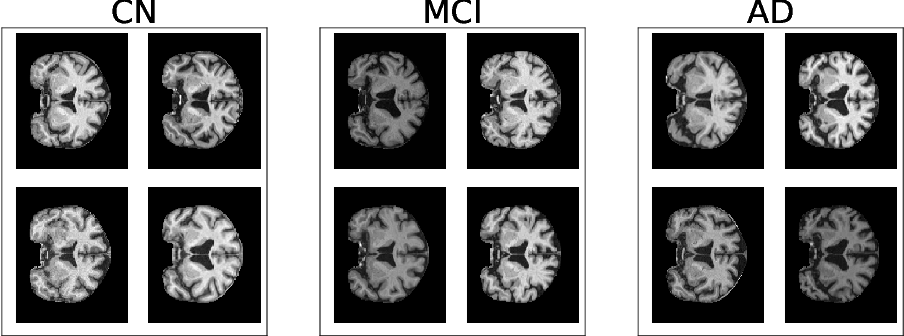 Figure 2 for Alzheimer's Disease Brain MRI Classification: Challenges and Insights