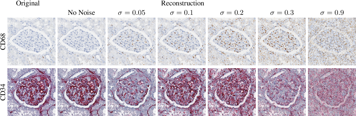 Figure 3 for Self adversarial attack as an augmentation method for immunohistochemical stainings