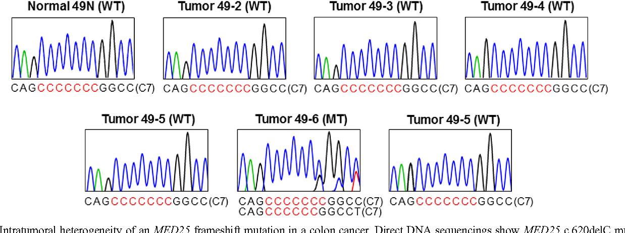 Frameshift Mutation of MED25, a Transcription Regulator, and its ...