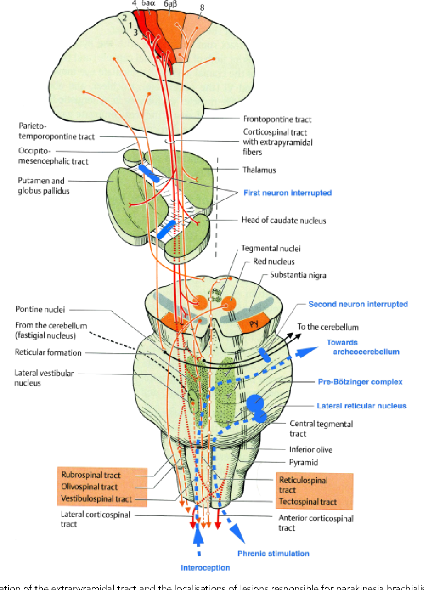 1 schematic representation of the extrapyramidal tract and the localisations of lesions responsible for