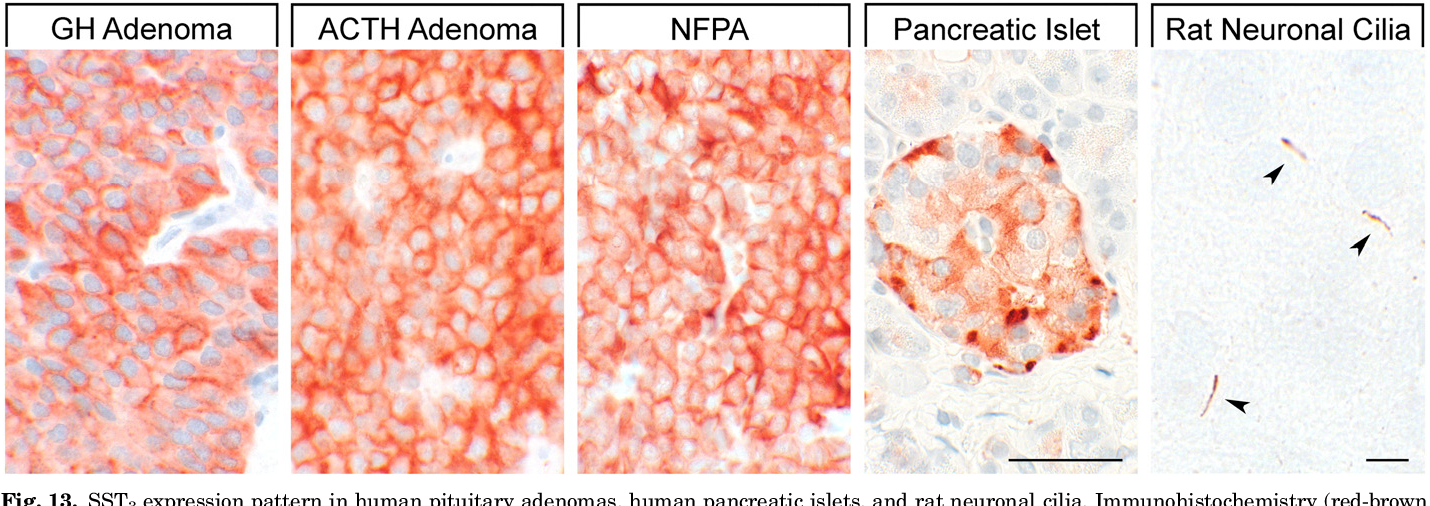 Fig. 13. SST3 expression pattern in human pituitary adenomas, human pancreatic islets, and rat neuronal cilia. Immunohistochemistry (red-brown color), counterstaining with hematoxylin; primary antibody: UMB-5; scale bar, 50 mm. SST3 displays both membranous and cytoplasmic expression. NFPA, clinically nonfunctioning pituitary adenoma.