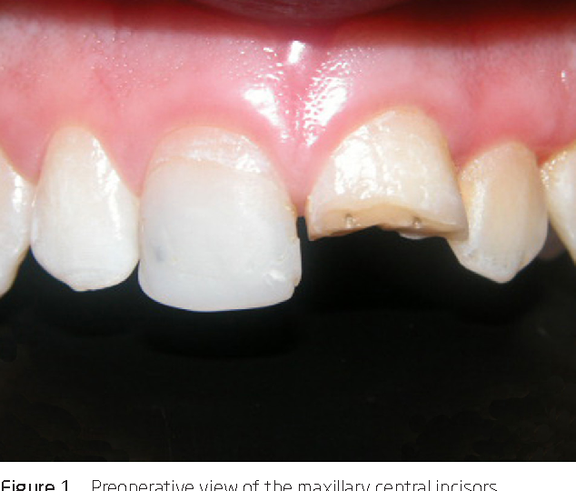 Of Esthetic after Complicated Fracture of Maxillary Anterior Central ...