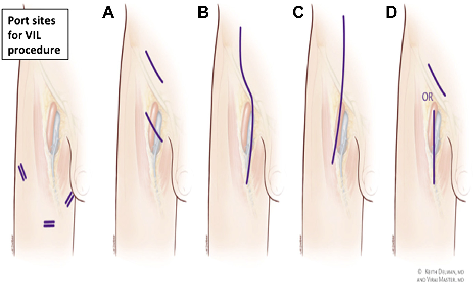 Figure 4 from Lymph node dissection for stage III melanoma ...