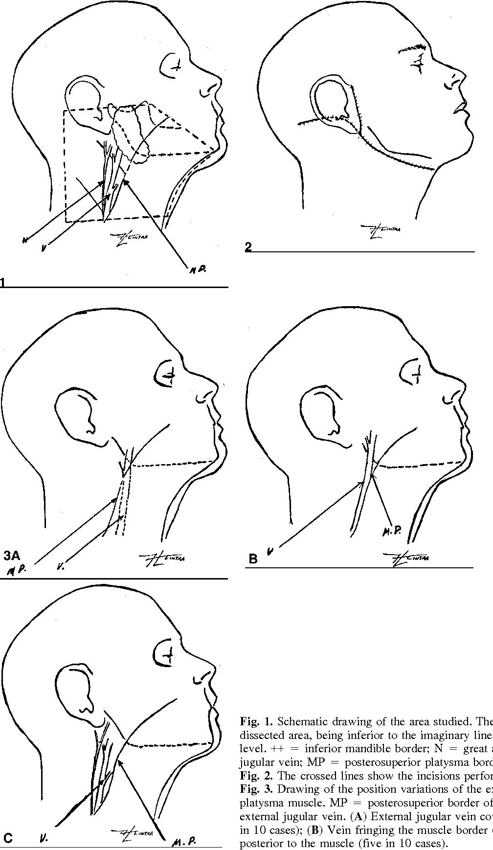 Anatomical Variations Analysis of the External Jugular Vein, Great ...