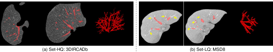 Figure 1 for Noisy Labels are Treasure: Mean-Teacher-Assisted Confident Learning for Hepatic Vessel Segmentation