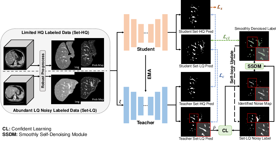Figure 3 for Noisy Labels are Treasure: Mean-Teacher-Assisted Confident Learning for Hepatic Vessel Segmentation