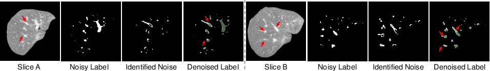 Figure 4 for Noisy Labels are Treasure: Mean-Teacher-Assisted Confident Learning for Hepatic Vessel Segmentation