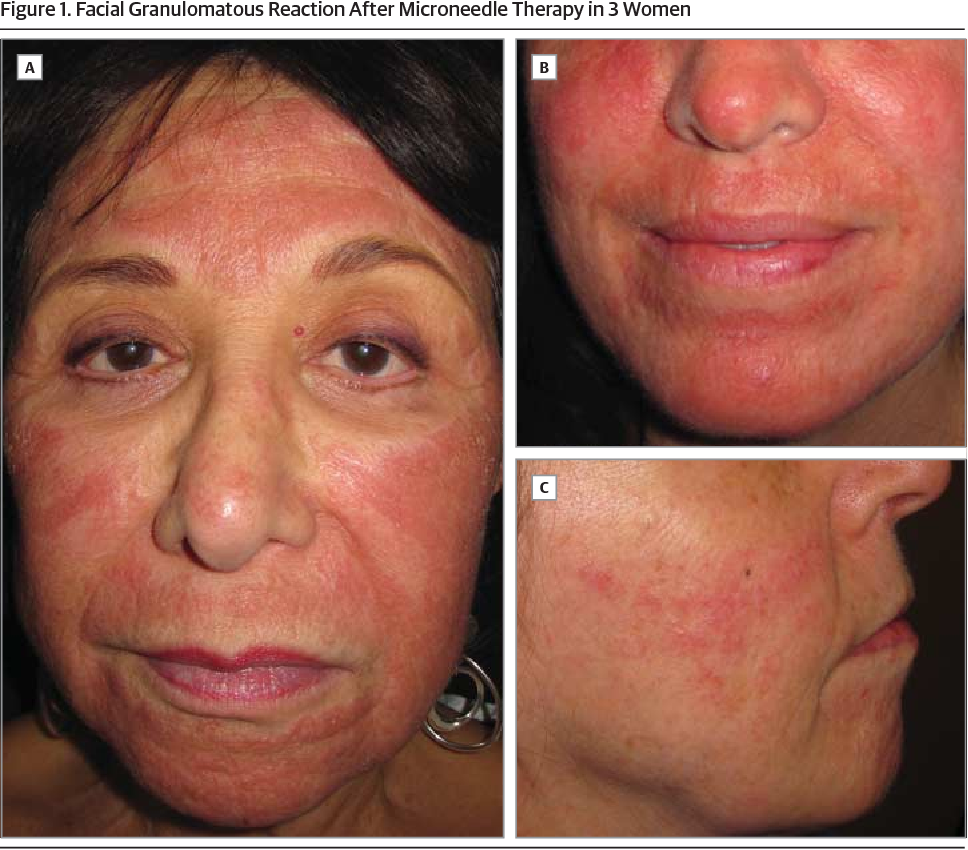 Facial allergic granulomatous reaction and systemic hypersensitivity ...