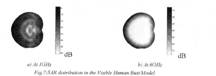 Fig. 7.SAR distribufion n the Visible Human BustModel