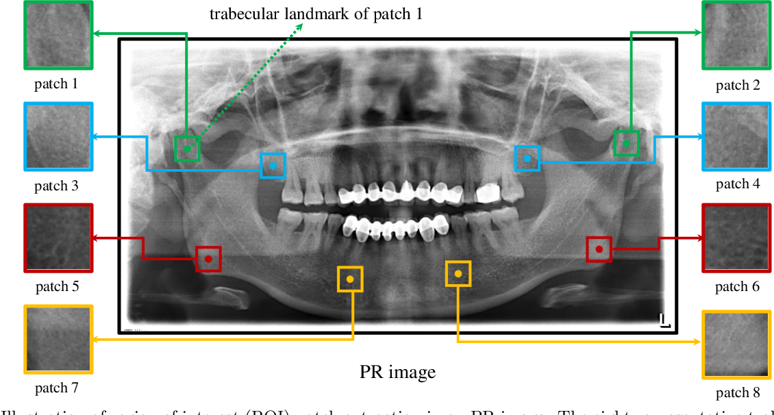 Figure 1 for Osteoporosis Prescreening using Panoramic Radiographs through a Deep Convolutional Neural Network with Attention Mechanism