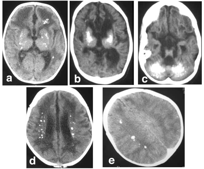 Figure 9. Examples of intracranial calcification on CT scan of patients with AGS. Calcification is seen in the basal ganglia (a and b), dentate nuclei of the cerebellum (c), a periventricular distribution (d), and within the deep white matter (e).