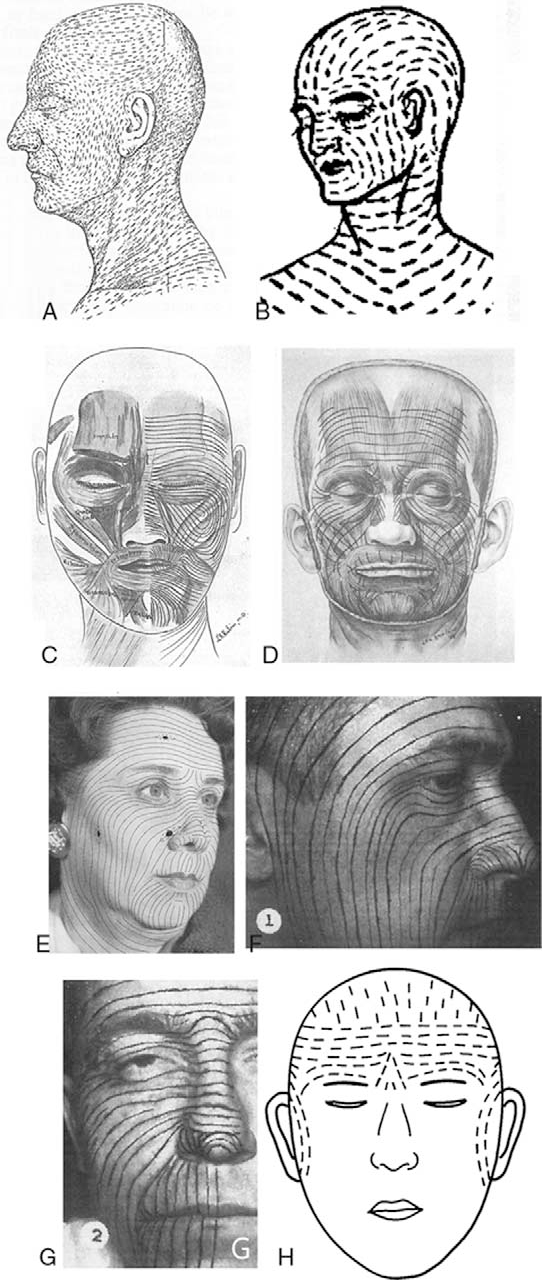 Figure 1 from Revisiting the Skin Lines on the Forehead and ...