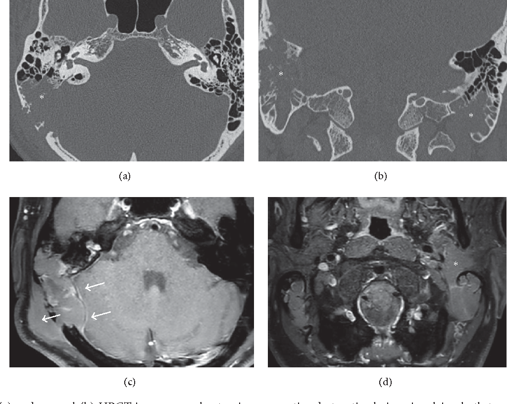 Figure 1 From Bilateral Non Hodgkins Lymphoma Of The Temporal Bone