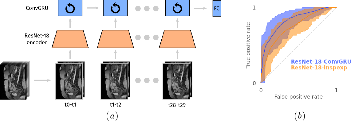 Figure 1 for Cine-MRI detection of abdominal adhesions with spatio-temporal deep learning
