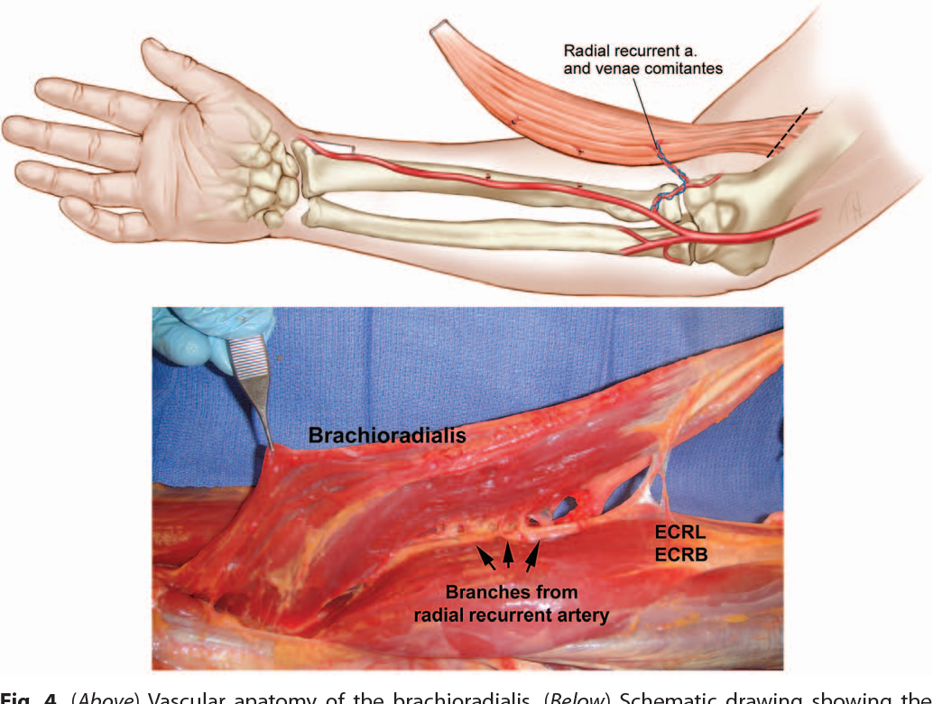 Figure 4 from Soft-tissue coverage of the elbow. - Semantic Scholar