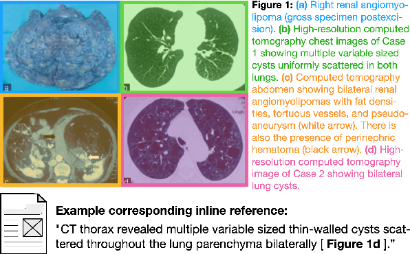 Figure 1 for MedICaT: A Dataset of Medical Images, Captions, and Textual References