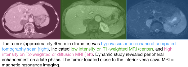 Figure 3 for MedICaT: A Dataset of Medical Images, Captions, and Textual References