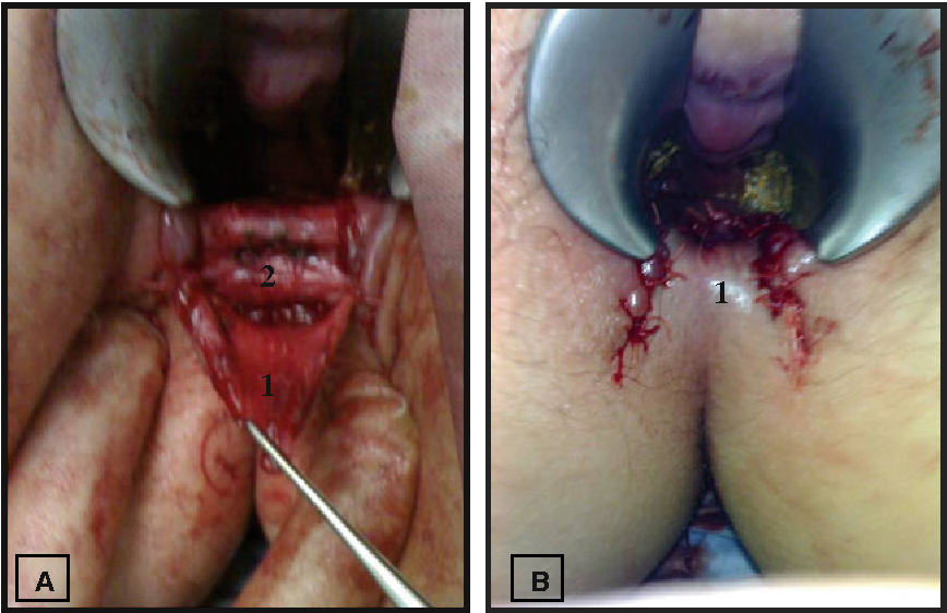 Anal fissure sergery