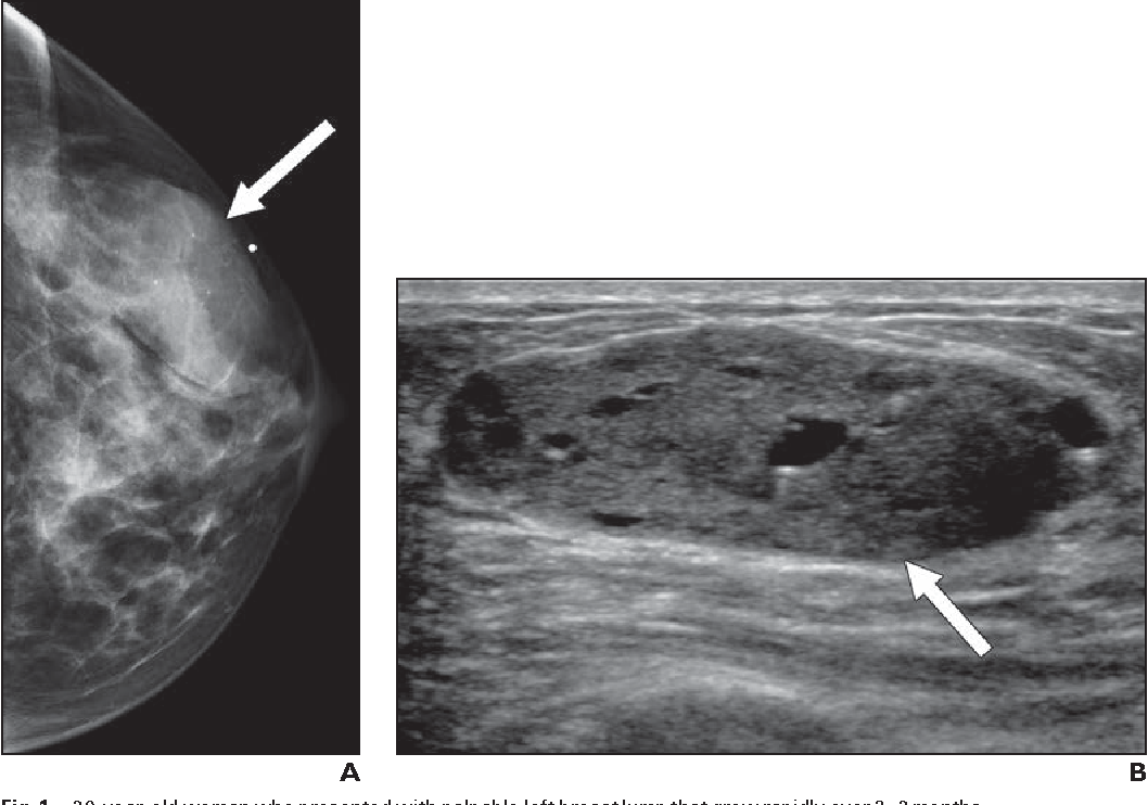 1—39-year-old woman who presented with palpable left breast