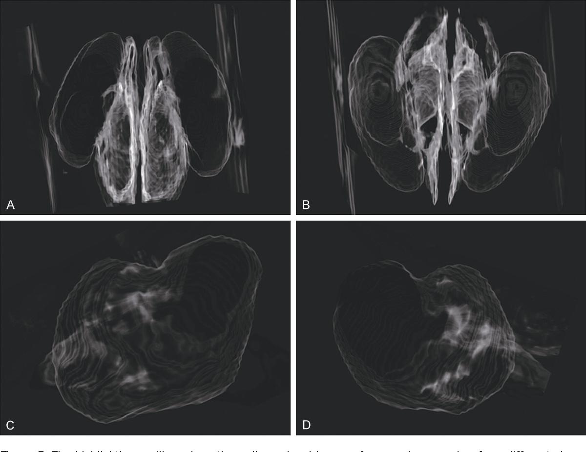 Applied anatomy of maxillary sinus in cynomolgus monkeys : a CBCT ...