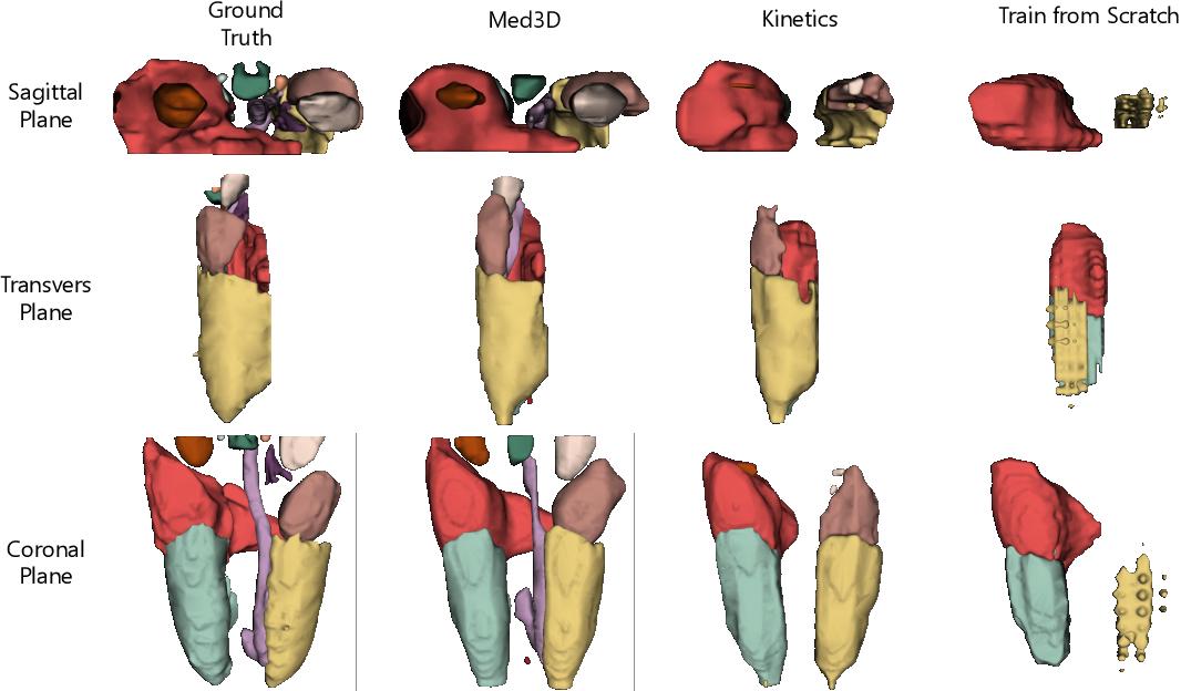 Figure 1 for Med3D: Transfer Learning for 3D Medical Image Analysis